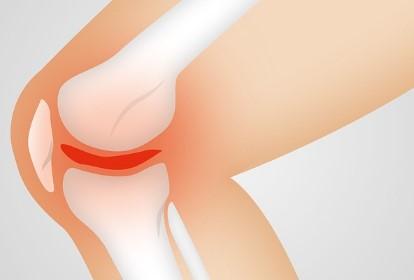 Reuma reumatoidná artritída